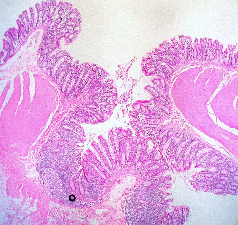 Filediverticulosis Ascending Colon 3776241546g Wikimedia