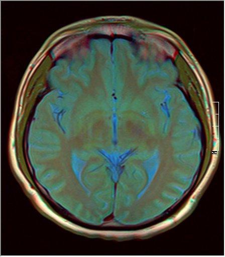 Brain MRI 0077 11.jpg