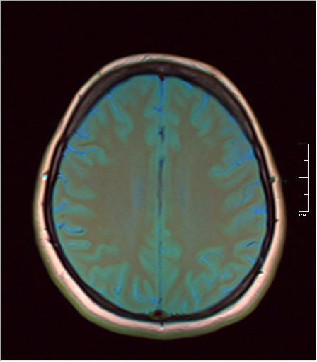 Brain MRI 06.jpg