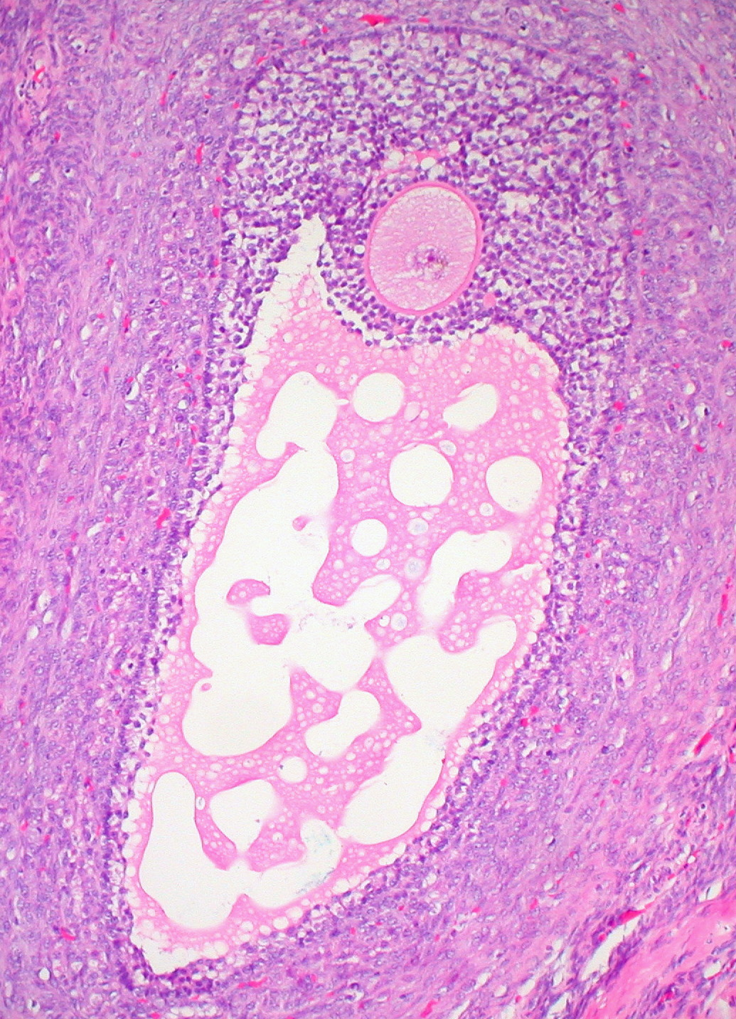 ovarian follicle wikipedia
