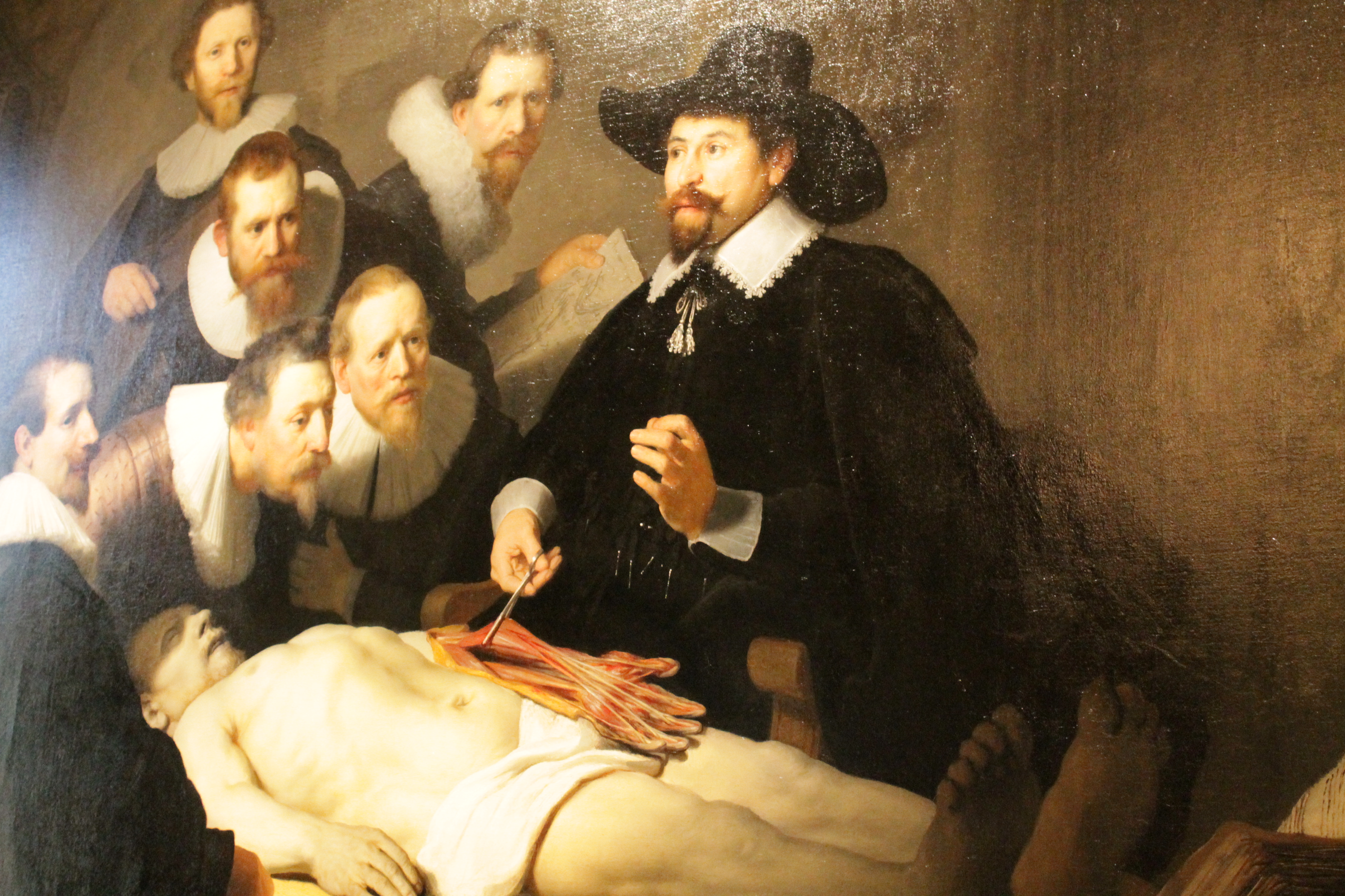 Anatomy Lesson Of Dr Nicolaes Tulp Gallery - human anatomy diagram ...