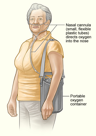 Woman carrying a portable oxygen concentrator.