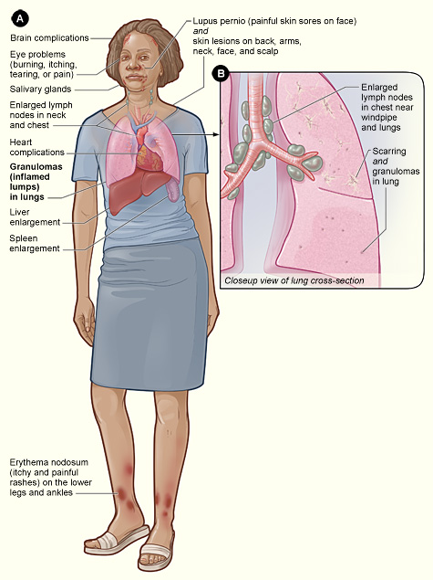 a description of what exactly fibromyalgia is Fibromyalgia definition is - a chronic disorder characterized by widespread pain,  tenderness, and stiffness of muscles and associated.