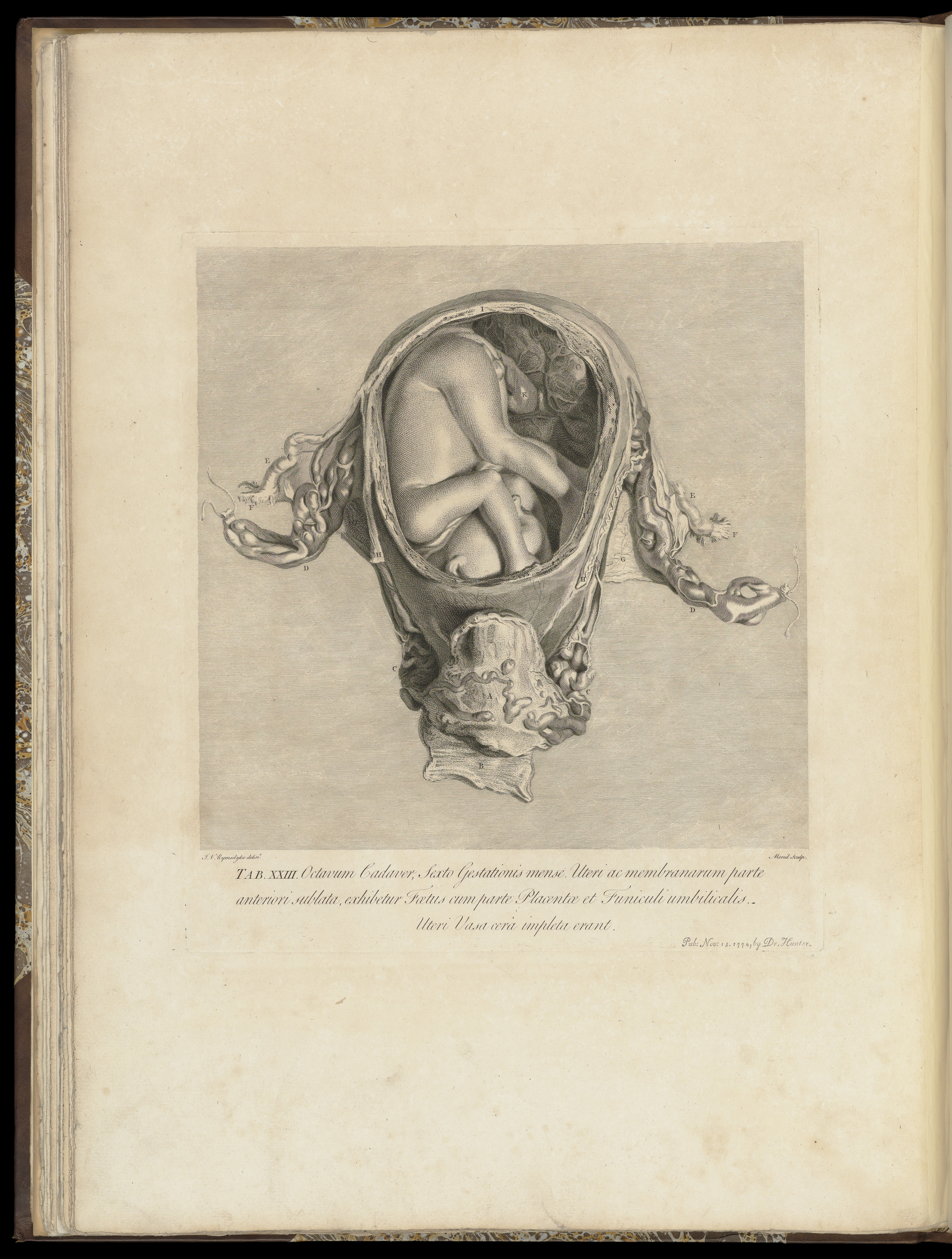 File:The anatomy of the human gravid uterus exhibited in figures ...