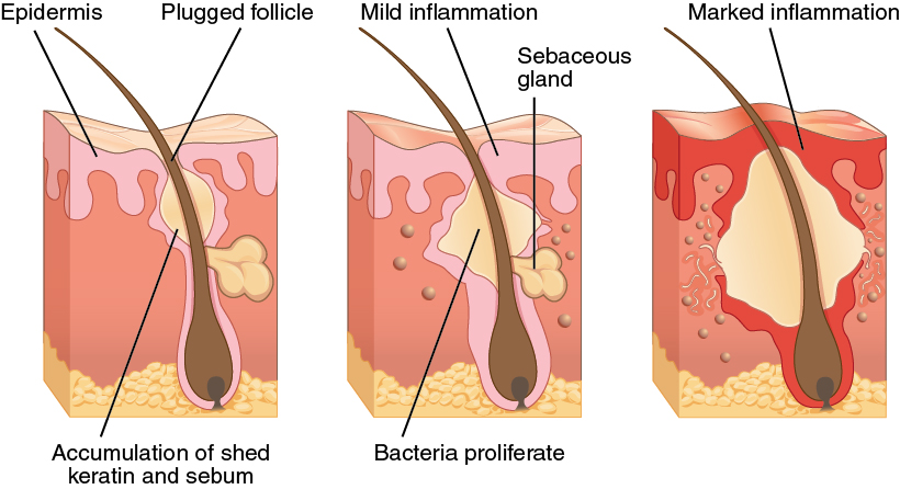 https://upload.wikimedia.org/wikipedia/commons/3/34/515_Acne_formation.jpg
