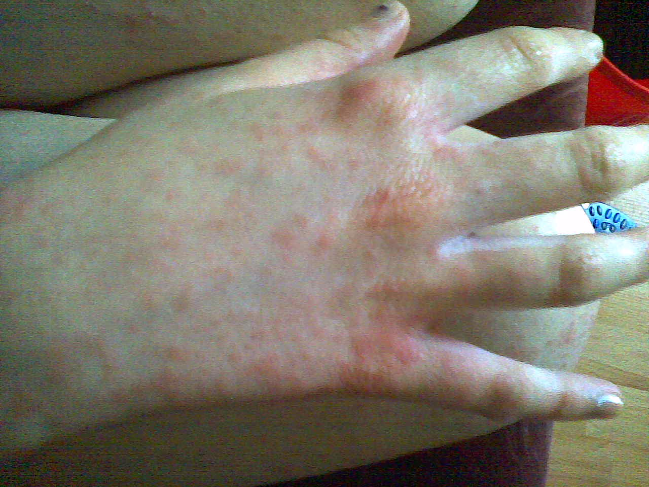 rash back of hand