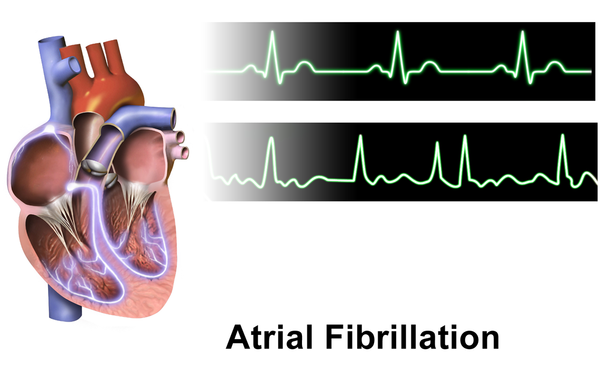 Atrial Fibrillation Isnt Just an Older Persons Problem recommendations