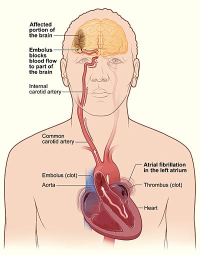 Atrial fib stroke.jpg