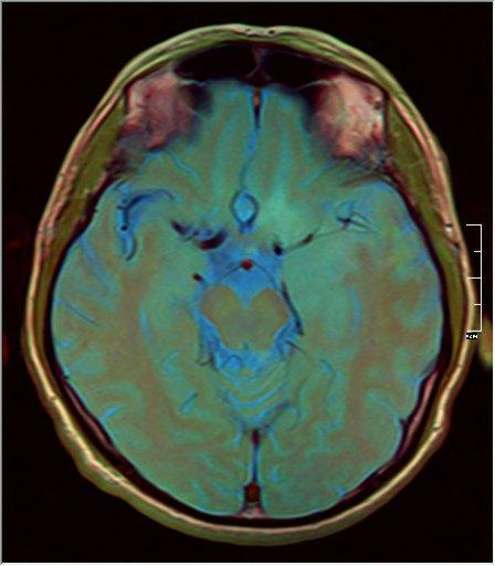 Brain MRI 0211 12.jpg