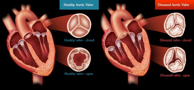 forkalket hjerteklap