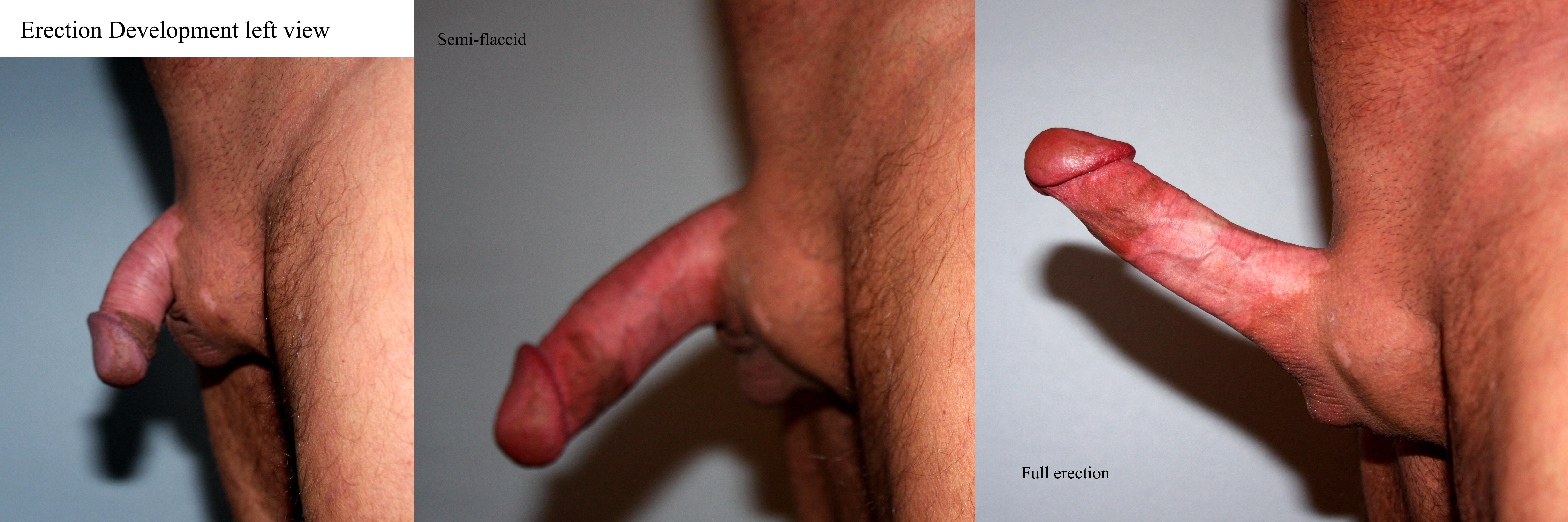 Average Penis Size Non Erect  Xxx Porn Library-1488