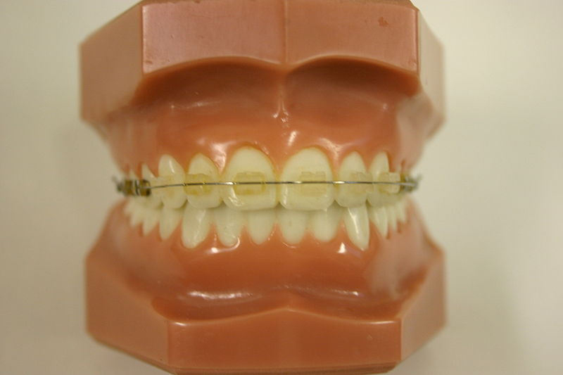 Go back gt gallery for gt clear braces vs color braces