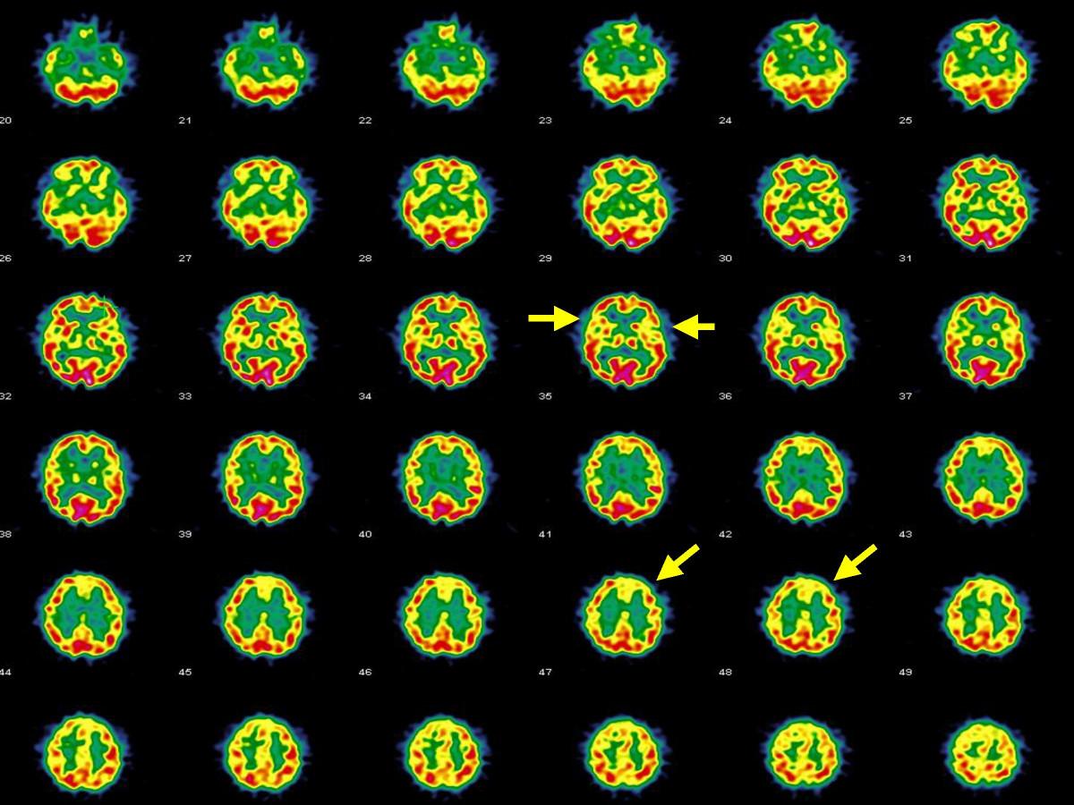 Hashimoto's encephalopathy - Wikipedia