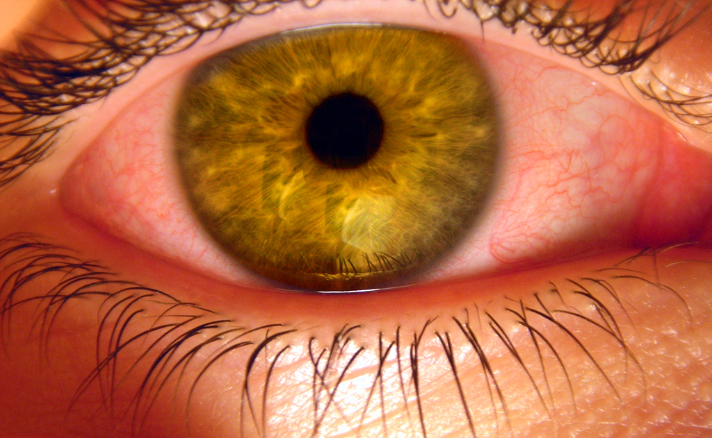 Why Do Eyes Swell With Allergies Redness And Itching Is