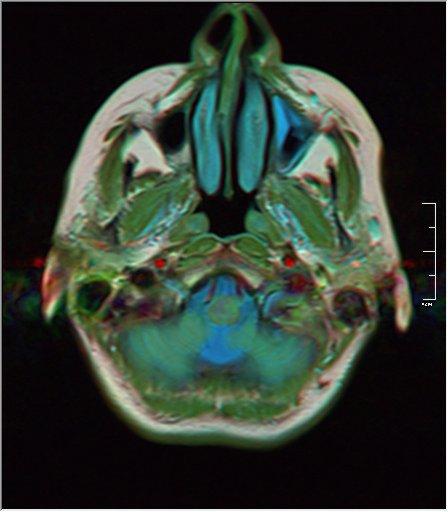 Brain MRI 0076 18.jpg