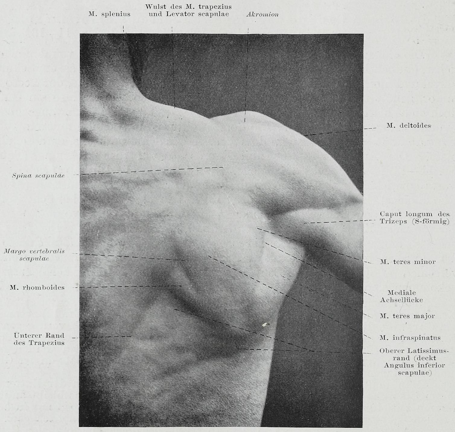 Großzügig Oberer Rückenmuskel Diagramm Zeitgenössisch - Menschliche ...