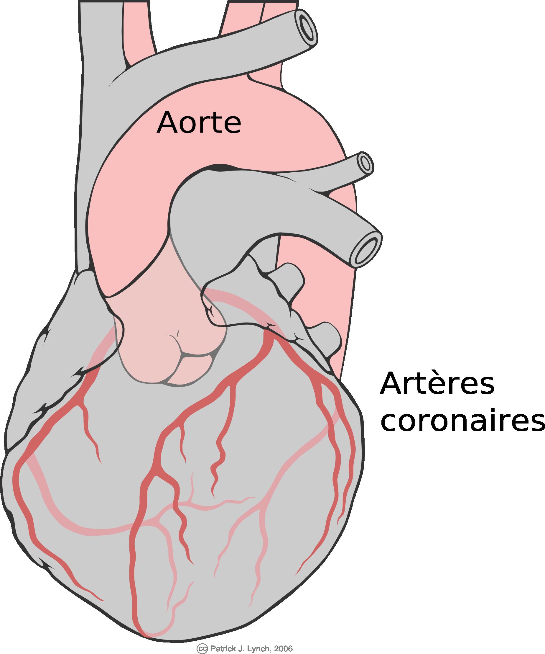 Schéma du coeur avec les artères coronaires