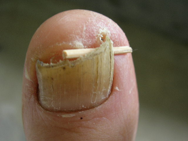 Ingrown toenail toothpick