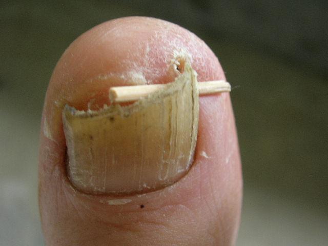 Nail Procedures Workshop