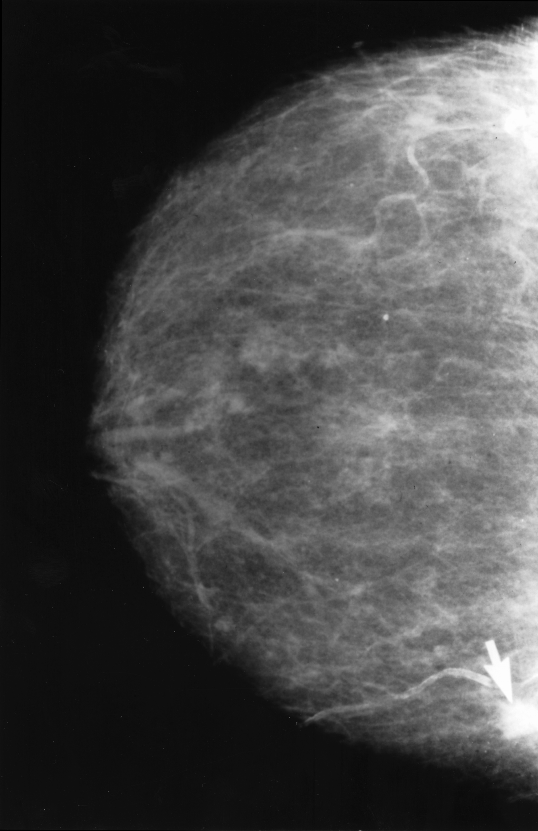 File:Mammogram with obvious cancer.jpg - Wikimedia Commons