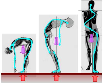 Columna vertebral - infografía