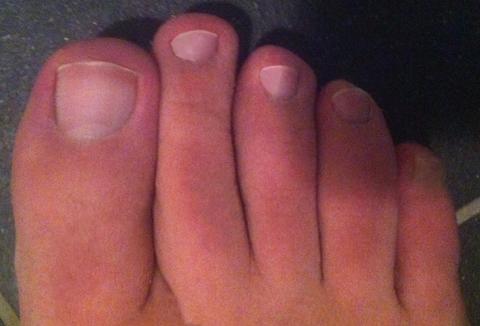 Griekse voet