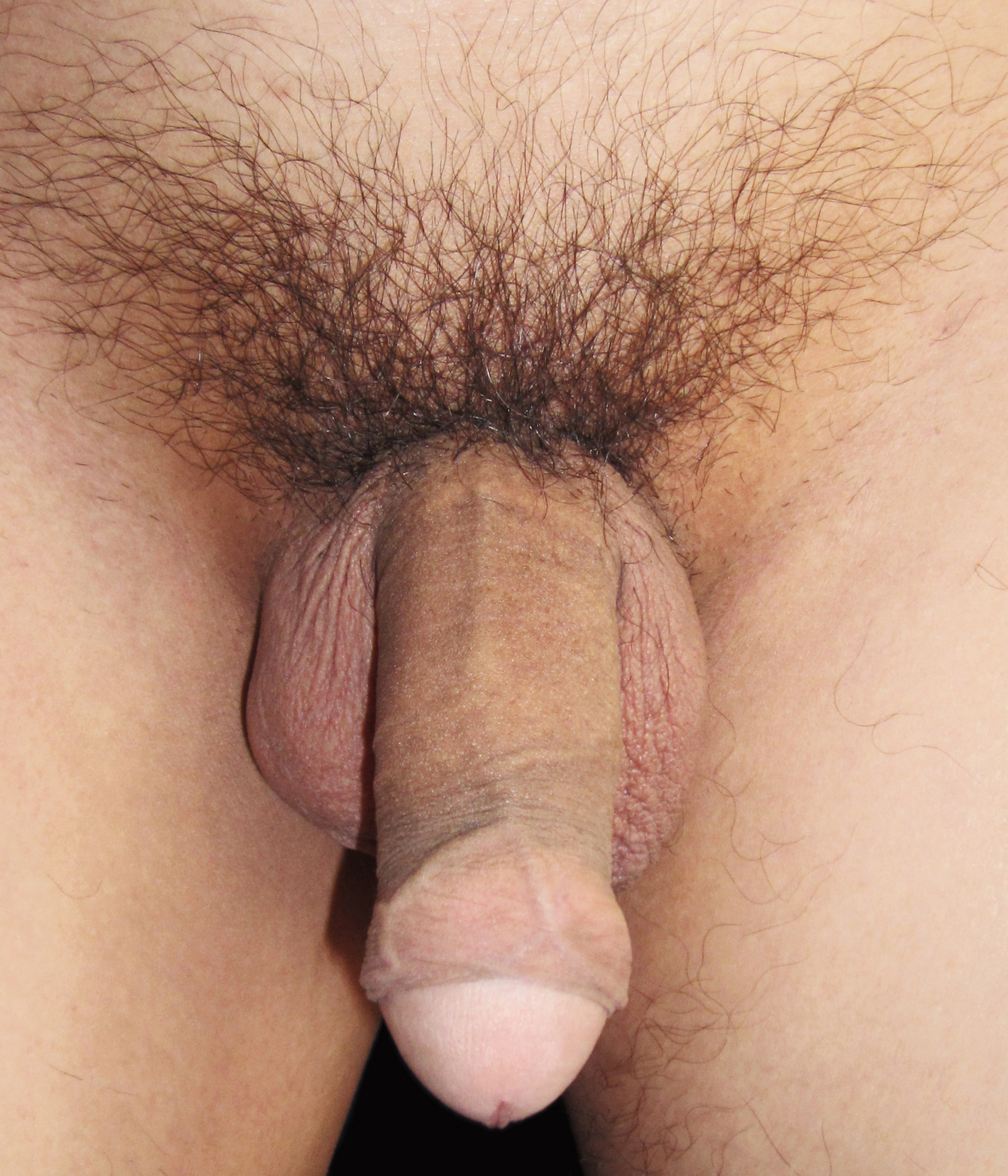 Erection close up - 33 Pics - xHamstercom