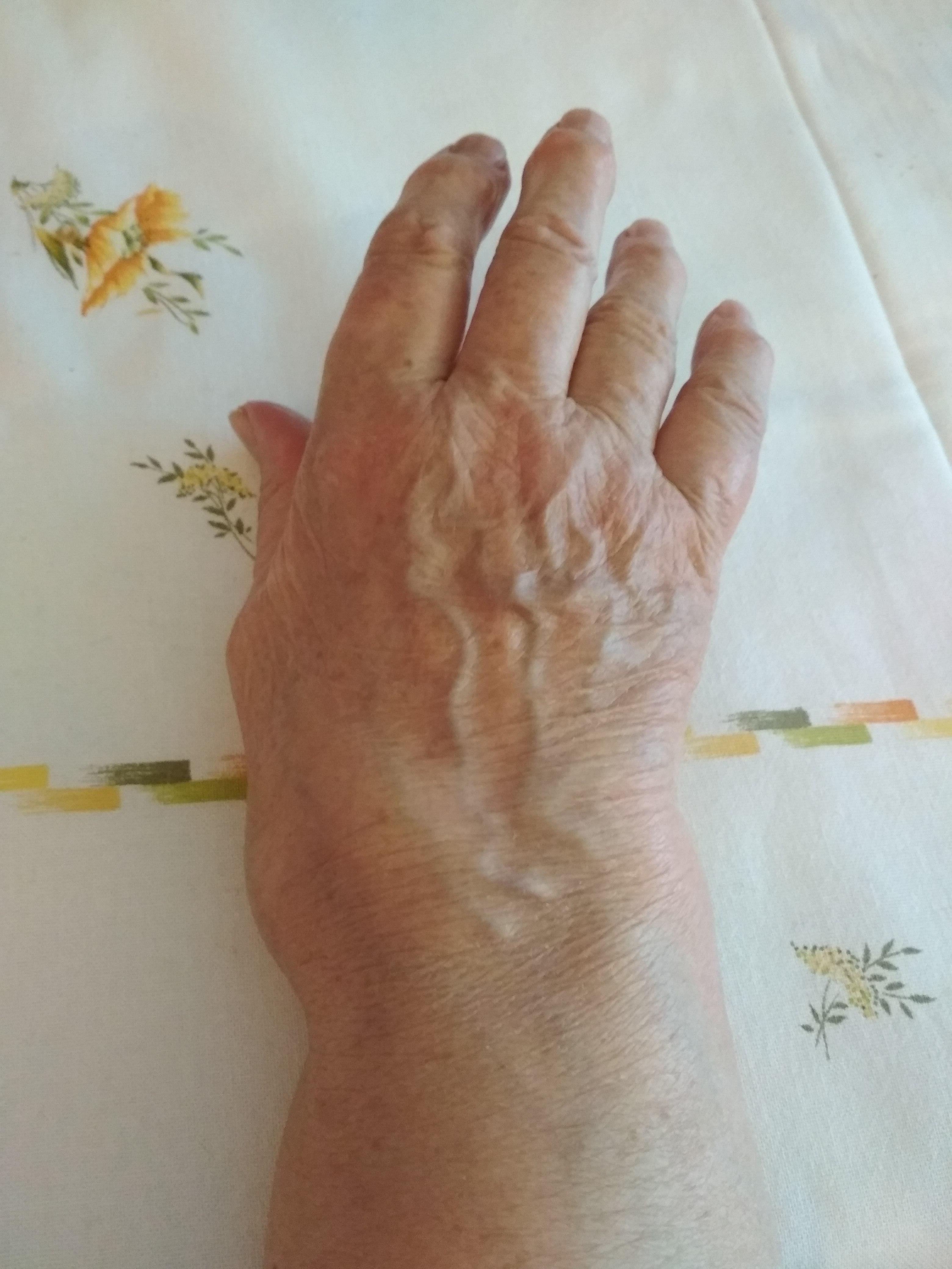 File Rheumatoid Arthritis Hand Jpg Wikimedia Commons