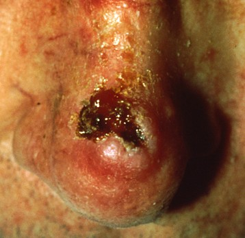 Squamous Cell Carcinoma1