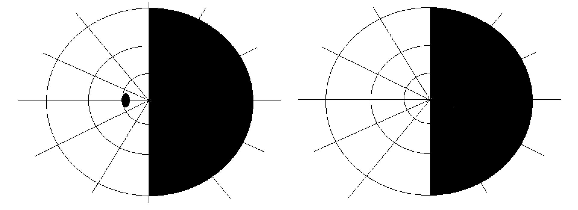 File:Visual field homonymous hemianopia.png - Wikimedia ...