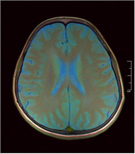 Brain MRI 0146 07.jpg