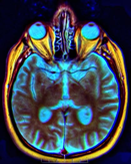 Archivo:Brain MRI 150443 rgbca t1 t2 t2STIR misreg.png - Wikipedia ...