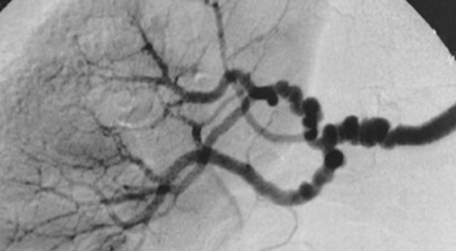 What causes angina pectoris