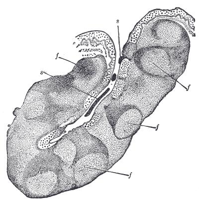 Palatine tonsil - Wikiwand