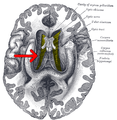 The Mysterious Corpus Callosum All In The Mind Abc Radio