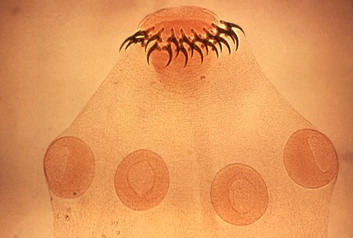 Mikroskopický pohľad na hlavičku pásomnice s prísavkami a háčikmi na uchytenie v čreve