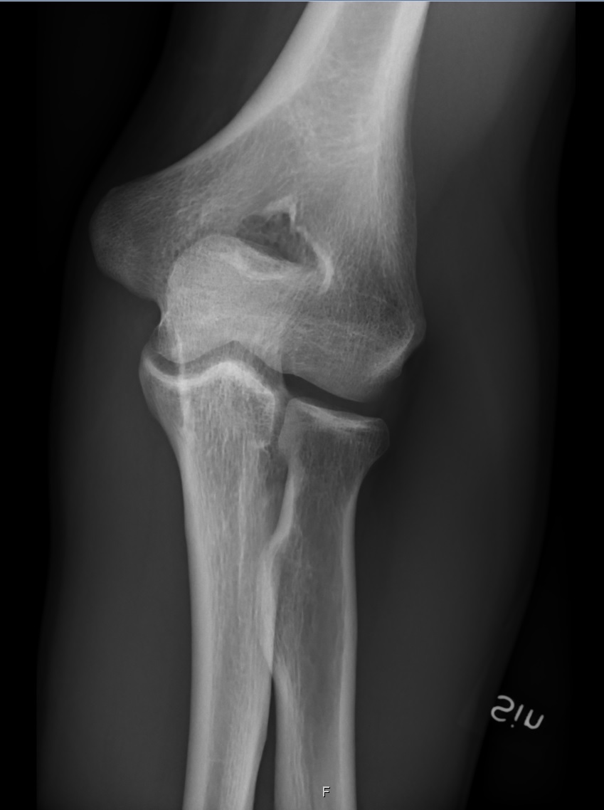 File:X-ray of normal elbow by anteroposterior projection ...