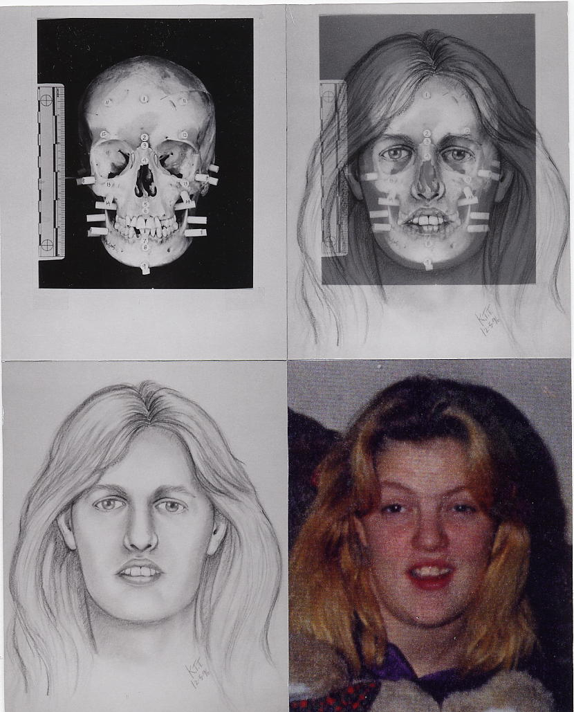 Facial reconstruction forensics