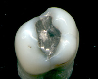 An extracted tooth displaying an amalgam metal restoration on the occlusal surface