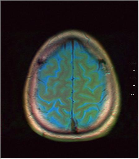 Brain MRI 293 02.png