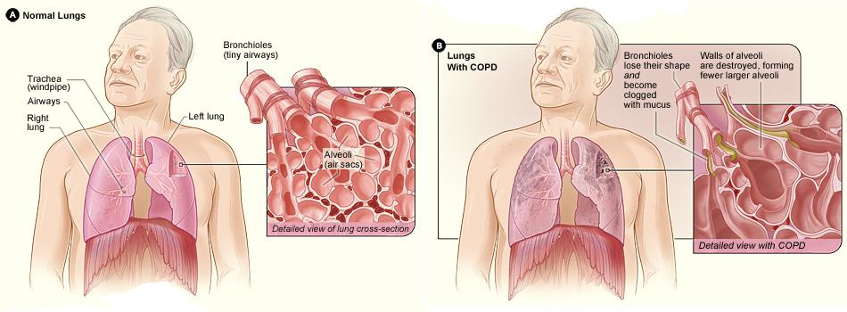 http://upload.wikimedia.org/wikipedia/commons/3/37/Copd_2010Side.JPG