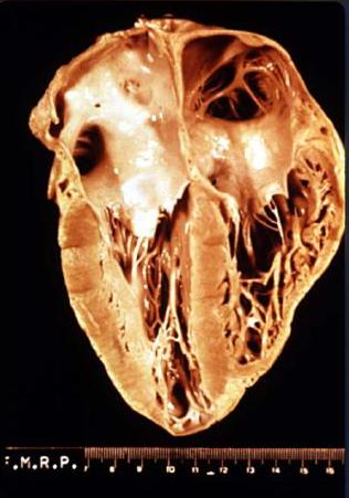Gross anatomy of a heart that has been damaged...