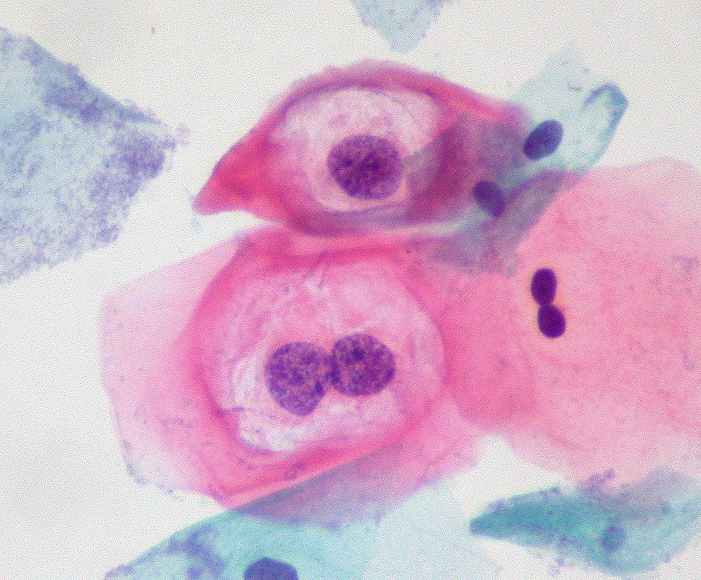 File:Low-Grade SIL with HPV Effect.jpg