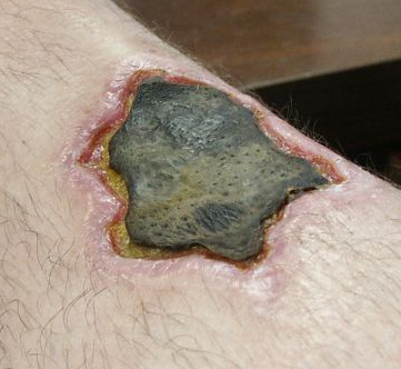 Necrotic leg wound caused by a brown recluse spider bite