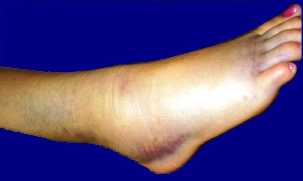 Can Chronic Ankle Instability Be.