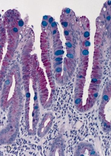 File:Barrett's mucosa, PAS-Alcian blue stain.jpg