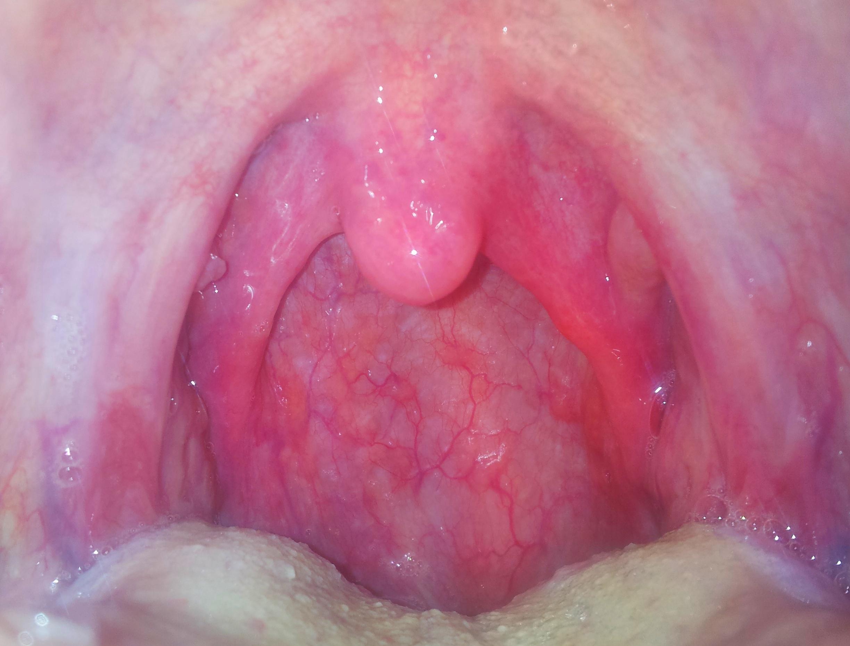 Krebs Symptome - Onmedade