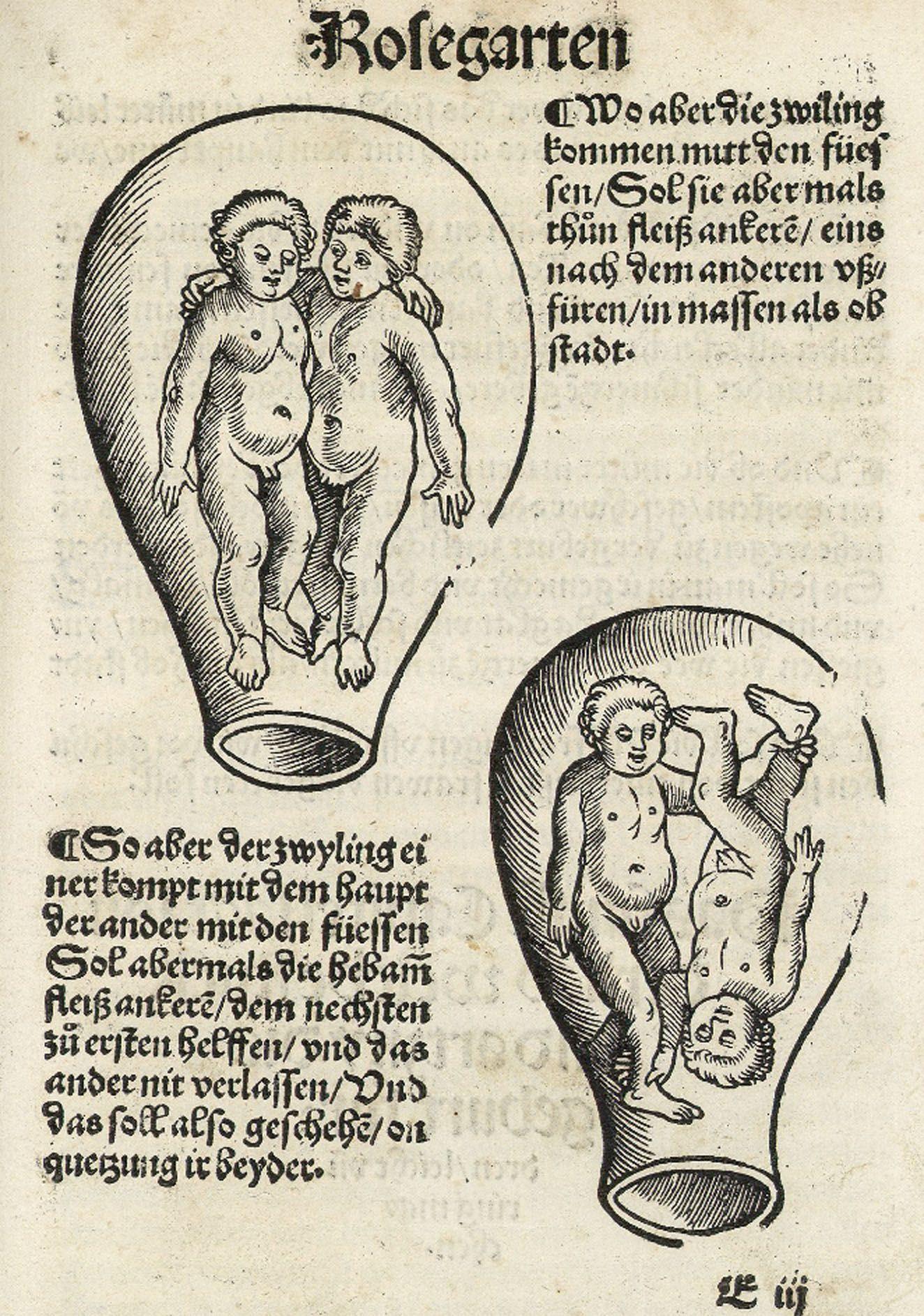 Presentation (obstetrics) - Wikipedia