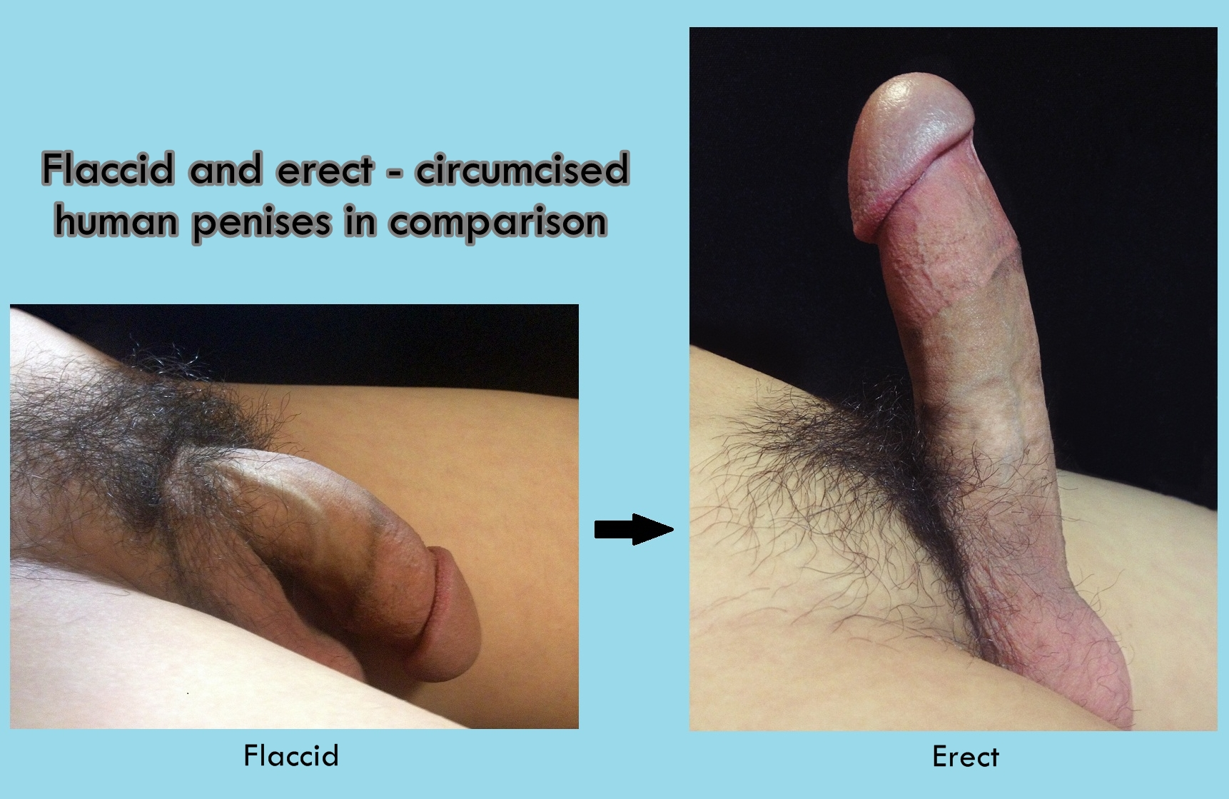 different-styles-in-penis-circumcision-fire-nude-gif