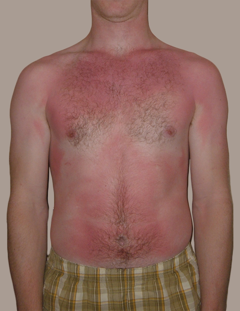 A sunburn is a typical first-degree burn.